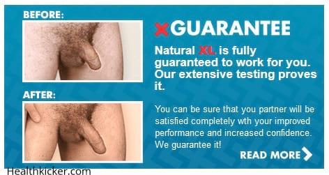 natural xl pills before after